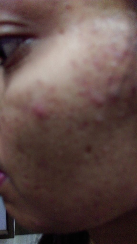ACNE BEFORE HOMEOPATHIC TREATMENT AT Dr SHAH's HOMOEOPATHY