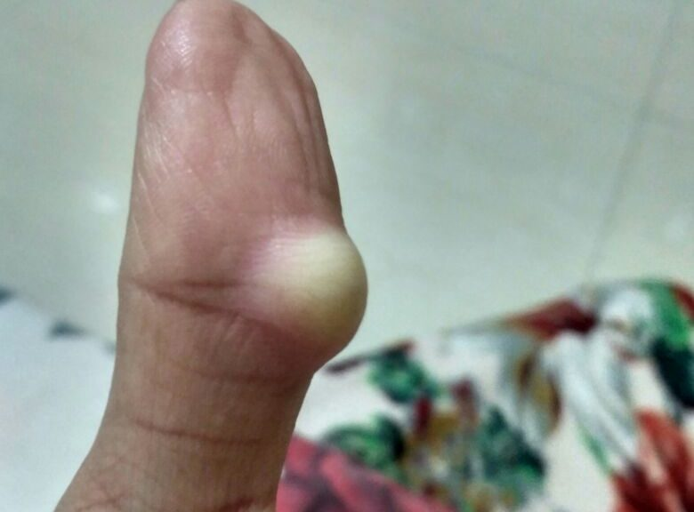 GANGLION CYST ON THUMB