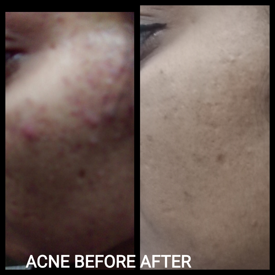 Acne Homeopathic Treatment approach, Homeopathic Medicines